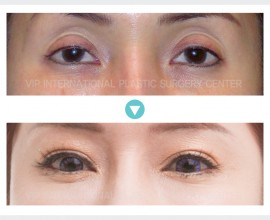 Ptosis Correction, Upper Eyelid Fat graft