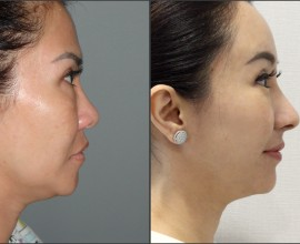 Rib cartilage Rhinoplasty, Endoscopic Forehead Lift, Fat gra…
