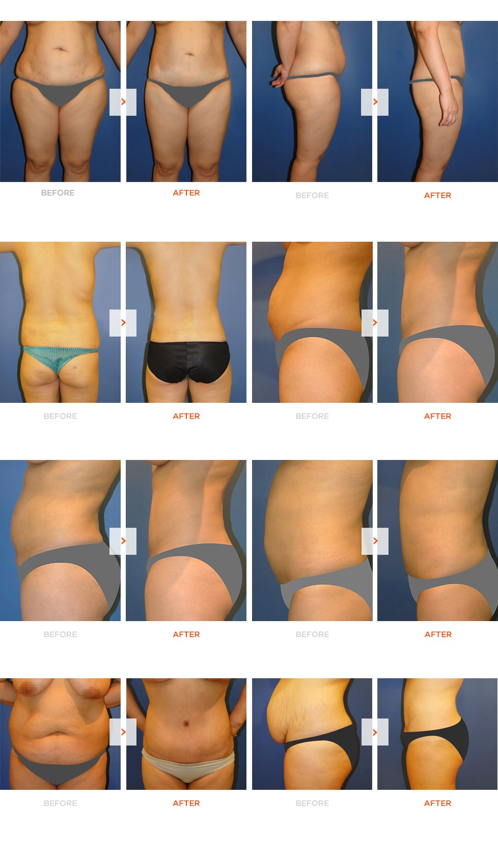 Tummy-Tuck Before and After