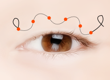 Steps for Incision Ptosis Correction Surgery Method