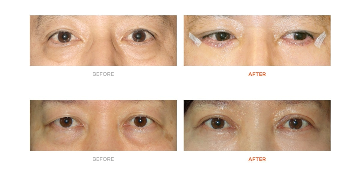 Eye bag surgery before and after
