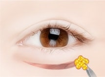 lower blepharoplasty surgery method