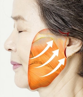 High smas facelift surgery method