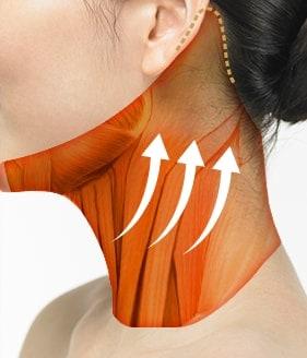 Necklift Surgery Method