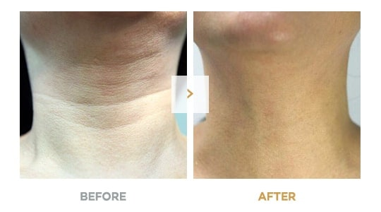 Non-Surgical Neck Wrinkle Removal Before and After