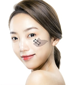 Cheekbone Reduction Surgery Method – Step 5