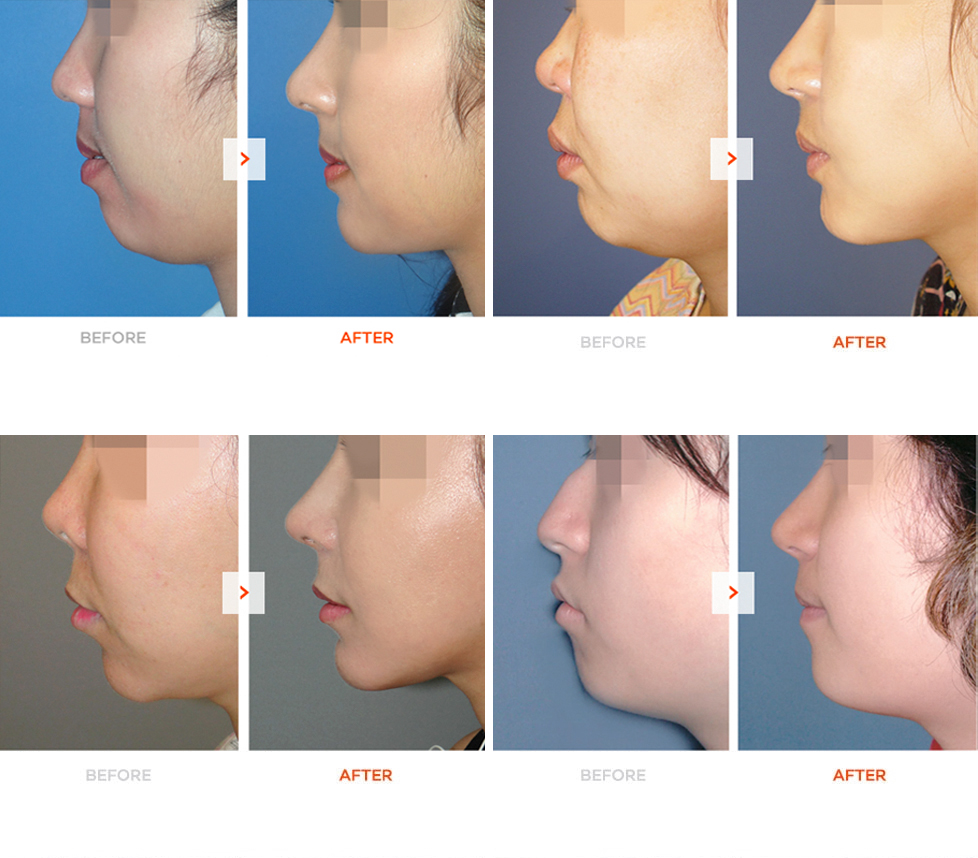 Genioplasty Before and After