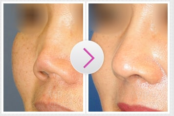 Columella Retruded Nose Before and After