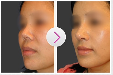 Right-Angled Nose Before and After